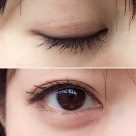 リッドキララ(LID KIRARA)で目が大きく二重になる口コミや噂は本当?